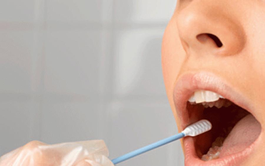 Teste AG Oral (saliva)   Foto: Internet
