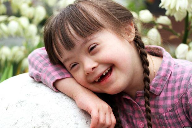 Dia Internacional da Síndrome de Down | Foto: Ascom Hapvida