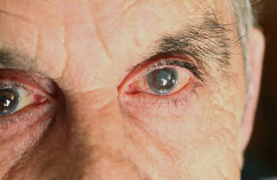 Glaucoma \ Foto: Ascom
